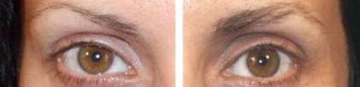 antes e depois minoxidil sobrancelha