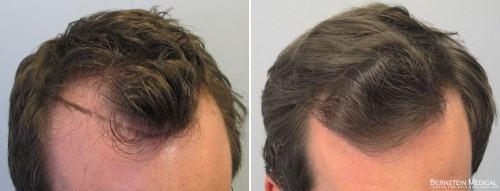antes e depois minoxidil