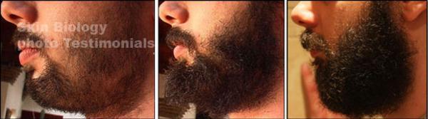 como fazer crescer barba