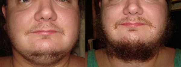 produto para crescer barba
