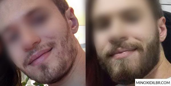crescimento-barba-minoxidil