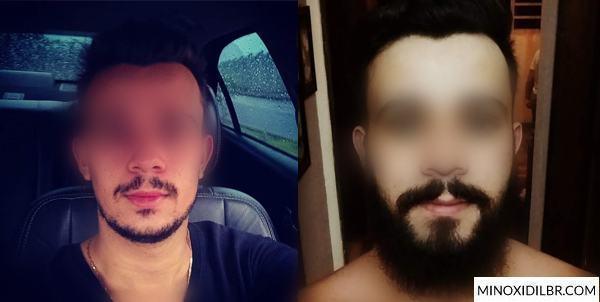 minoxidil-crescer-barba-resultado