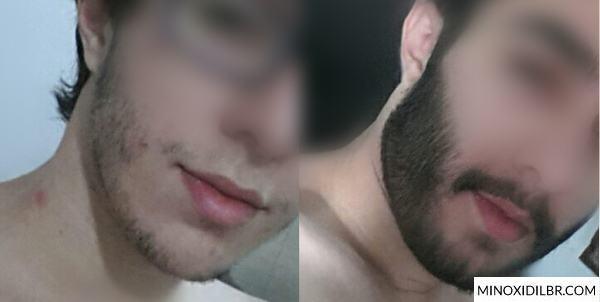 resultado-barba-minoxidil