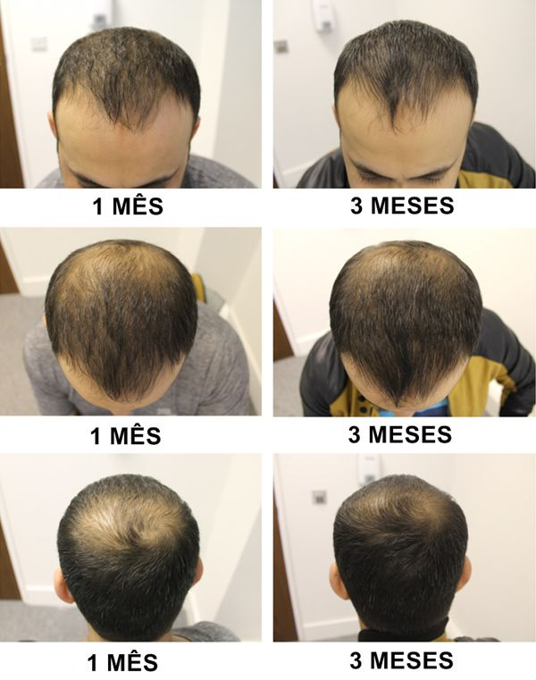 resultado hairloss blocker