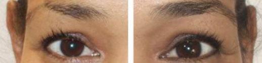 minoxidil antes e depois na sobrancelha
