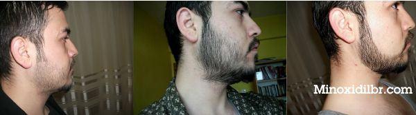 crescer barba falhada