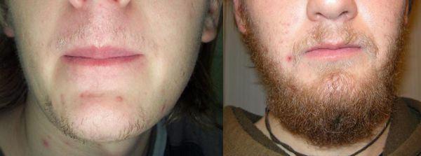 crescer barba mais rápido
