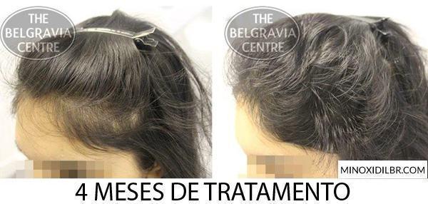 minoxidil-queda-de-cabelo-feminino