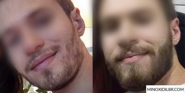 resultado aloxidil antes e depois